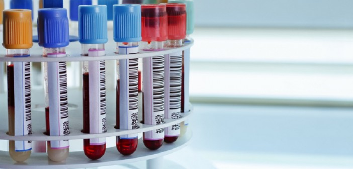 Huntington's disease blood biomarker identified