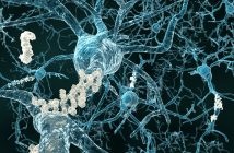 Elucidating the link between the modifiable risk factors of Alzheimer