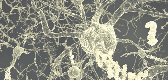 Is amyloid-beta transmissible?