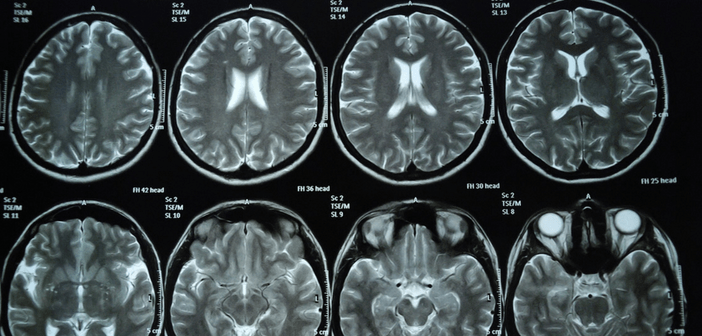 Is there a link between diabetes and Parkinson's disease?