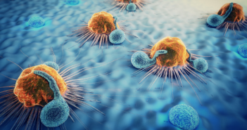 This is an image of yellow cancer cells on a blue background.