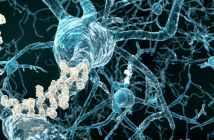 Update on biomarkers for amyloid pathology in Alzheimer