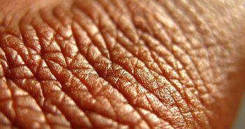 This is a high definition image of human skin.