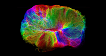 This is a cerebral organoid image from the Medical Research Council.