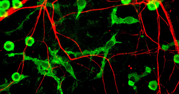 This is an image taken from Wikimedia Commons that shows neurons and surrounding microglia.