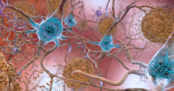 This is an image of neurons showing beta-amyloid plaques and tau.