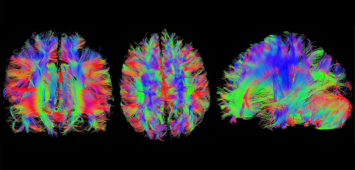 This is a colourful image of the brain connectome.