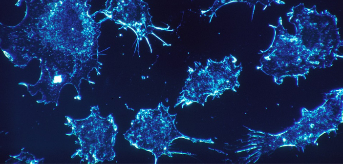 This image illustrates cancer cells in the colour blue.