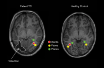 This is an image revealing that brains of children with epilepsy are able to remap after surgery to retain visual perception.