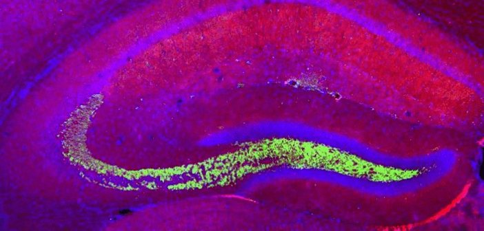 This is an image from a news story on how exercise could change the structure of mouse brains modeling autism spectrum disorder.