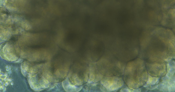 This is an image from the NIAID on a brain organoid used to study prion disease.