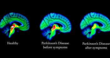 This a neuroimaging picture that illustrates changes in the brain relating to Parkinson's disease.