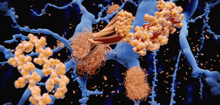 This image illustrates Alzheimer's disease neurons, specifically the AB peptide, amyloid fibrils and amyloid plaques.