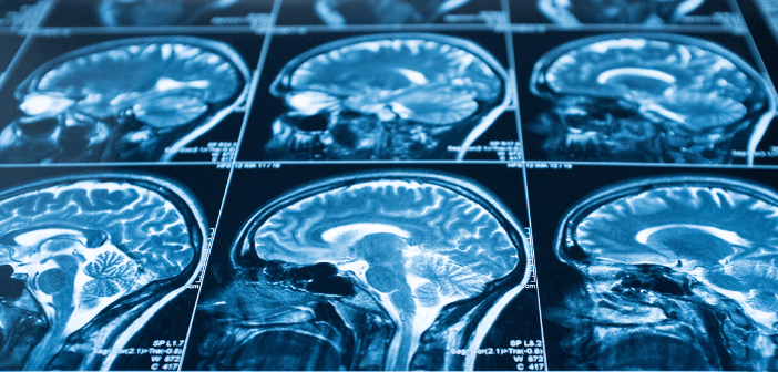 Could MRI scans predict the disease progression of multiple sclerosis?