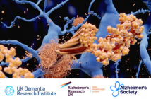 This is a feature image for an 'Ask the Experts' feature on, 'The future of dementia research', originally published on Neuro Central in partnership with Alzheimer's Research UK, Alzheimer's Society and the UK Dementia Research Institute.