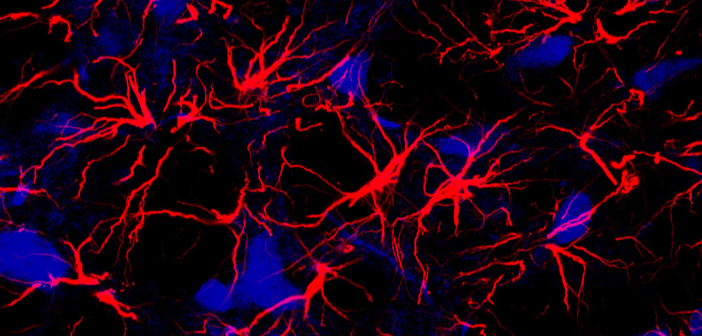 This is an image of astrocytes (highlighted in red).