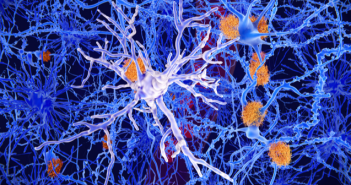 This is an image of neurons featuring microglia in the foreground.