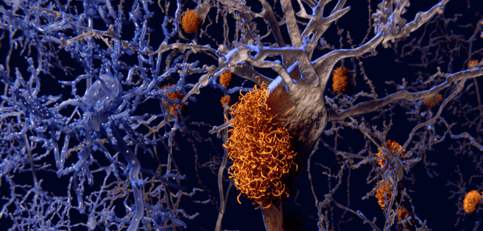 This is an image of neurons with amyloid plaques.