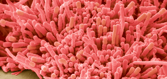 This is an image of plaque-forming bacteria.