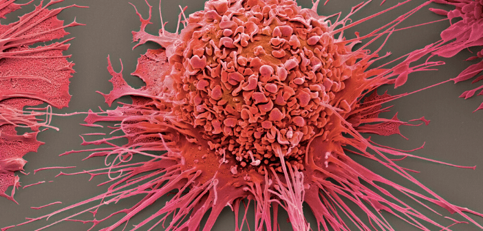 This is a coloured scanning electron micrograph of an activated human macrophage.