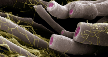 This is a SEM image of myelinated nerve fibers.