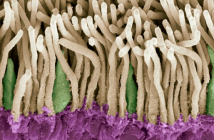 This is a scanning electron micrograph (SEM) image of the retina, showing rods (in yellow) and cones (in green). The outer nuclear layer is purple.