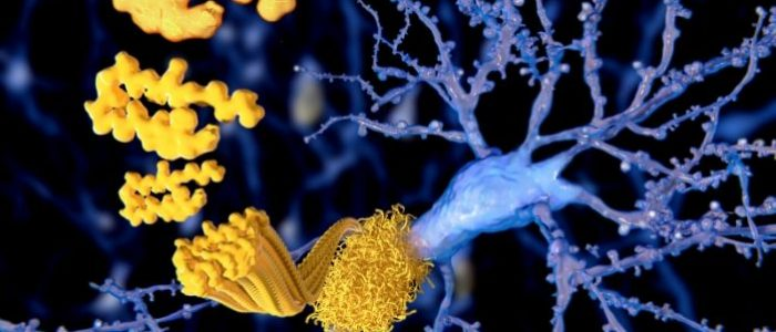 Nanodevices in the brain could target Alzheimer's by clearing β‐Amyloid