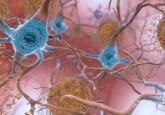 Alzheimer's disease drug
