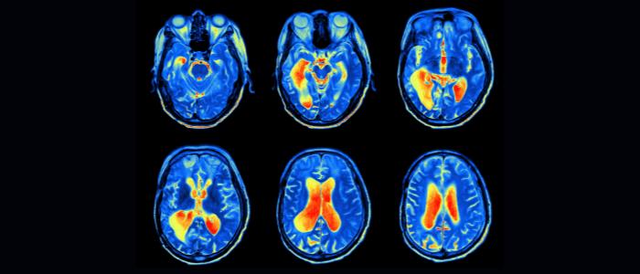 Alzheimer's prediction